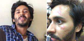 Abhay Mahajan Underwent a Plastic Surgery During Gachhi's Shoot!